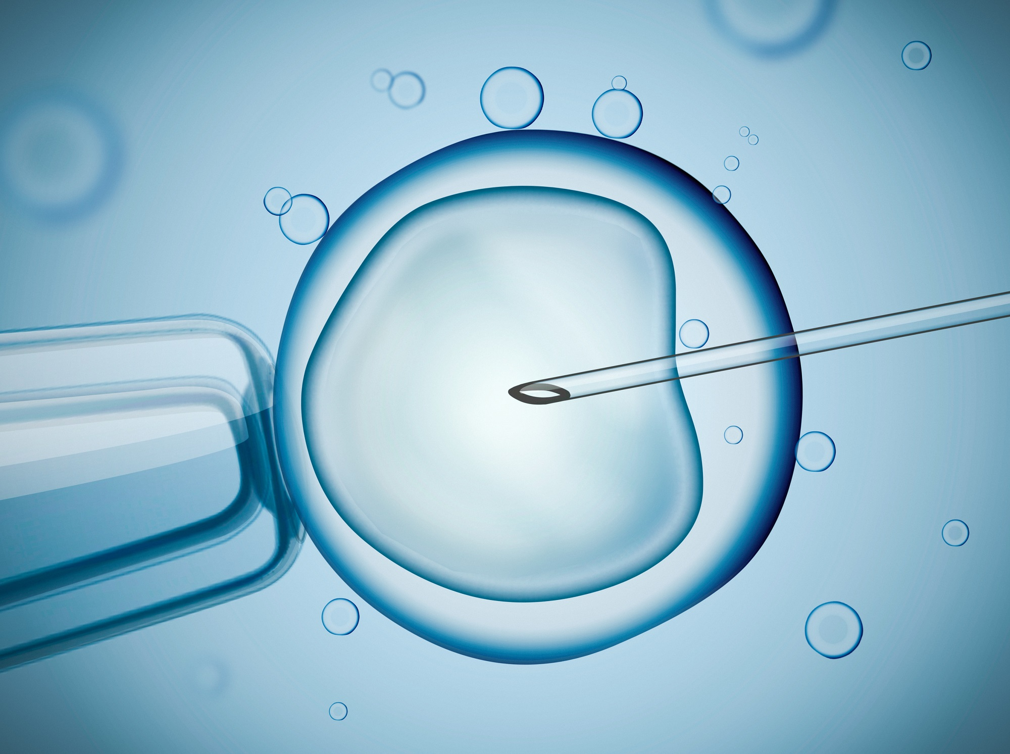ICSI fertility treatment